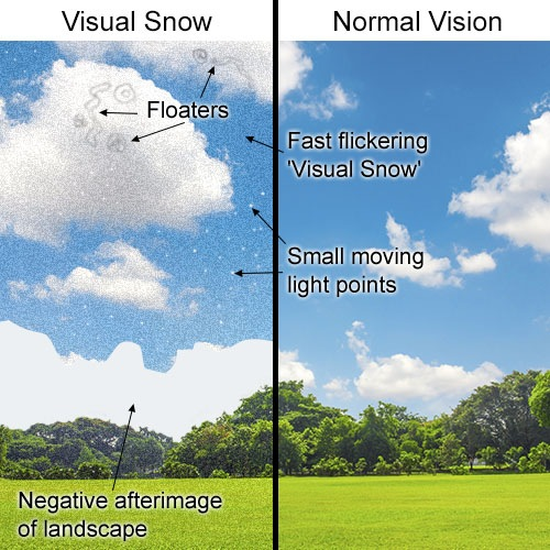 Visual Snow Example image